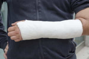 Man in cast exempt from workers compensation